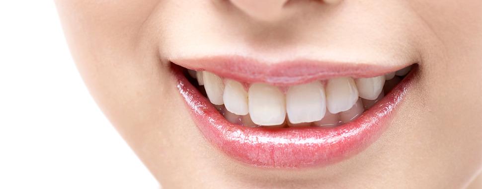 審美的歯科治療について