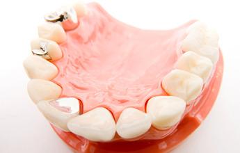 銀歯が気になる方へ