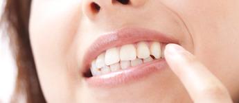 歯を白くしたい